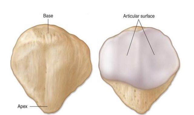 Who is more likely to have anterior patella pain (knee cap)?