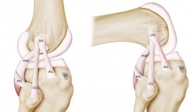 Antero-Lateral Ligament (ALL) Augmentation
