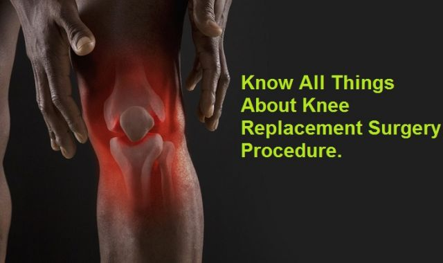 Know all things about Knee Replacement Surgery Procedure.