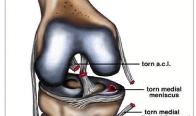 ACL rupture and associated structural injuries of the knee